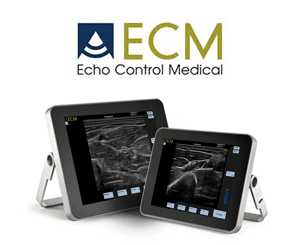 ECM echo control medical